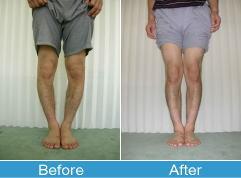 男性のO脚矯正写真