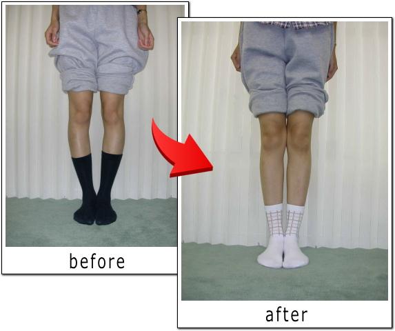 脚 治す O 膝下O脚の原因とは?予防法となってしまった時の対処法をご紹介!